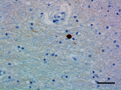 A17183A_HRP_alpha-Synuclein_1_101519.png