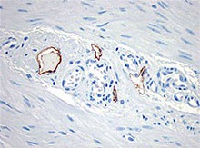 D2-40_Purified_D2-40_Lymphatic_Endothelial_Marker_Antibody_IHC_030615