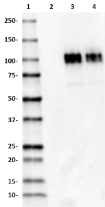 M3dot2_HRP_beta-amyloid_Antibody_1_041118