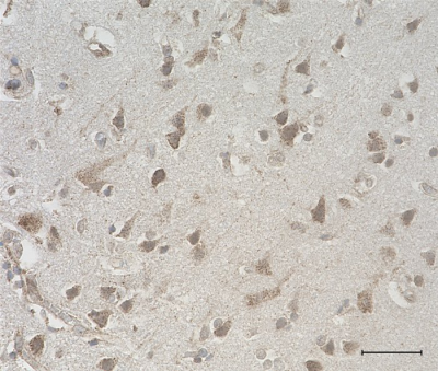 /Files/Images/media_assets/products/product_images/N97Aslash31_Purified_Neuroligin-1_Antibody_1_032218.png