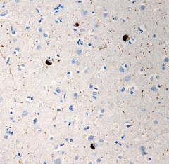 P-synslash_81A_Purified_a-synuclein_Antibody_IHC_021715