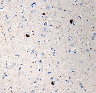 /Files/Images/media_assets/products/product_images/P-syn81A_PURE_a-Syunclein_phospho_Antibody_042518.png