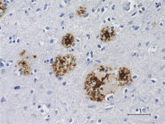 QA18A67_Purified_beta-Amyloid_Recombinant_Antibody_061819.png