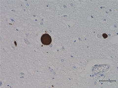 A_Syn204_Ascites_a-Synuclein_IHC_110918
