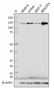 W15202A_PURE_HDAC5_Antibody_WB_031519_updated.png