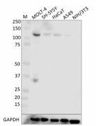 W18116A_PURE_Rb_Antibody_1_093019.png