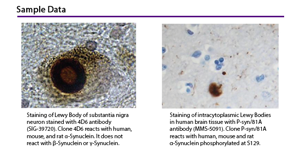 Sample Data: Staining of Lewy Body of substantia nigra neuron stained with 4D6 antibody (SIG-39720). Clone 4D6 reacts with human, mouse, and rat a-Synuclein. It does not react with b-Synuclein or y-Synuclein. Staining of intracytoplasmic Lewy Bodies in human brain tissue with P-syn/81A antibody (MMS-5091). Clone P-syn/81A reacts with human, mouse and rat a-Synuclein phosphorylated at S129.
